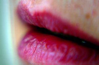 Lips-apdk on flickr